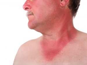 Sunburns (Photo Credit: Organic Facts) - Read Risks while Travelling to SEA